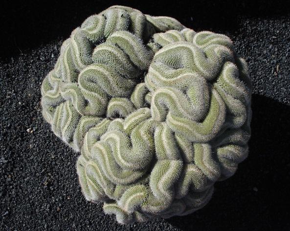 Мозъчна смърт - мозъчен живот!